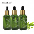 BREYLEE Facial Acne Treatment Serum Face Scar Pimple Removal Whitening Acne Remove acne Skin health care product