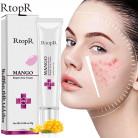 Acne Treatment Face Cream