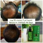 Neo Hair Lotion Spray Herbs 100% Natural Treatment